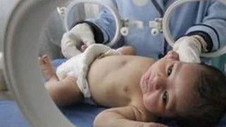 Prezydent przeciwny aborcji eugenicznej