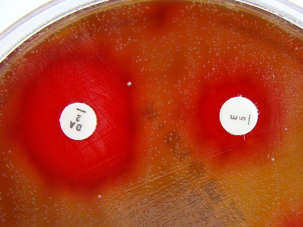 Ustawa oin vitro. Pięć minusów