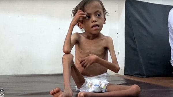 Katastrofalna sytuacja humanitarna w Jemenie